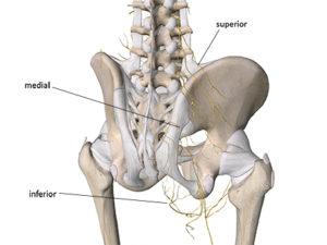 Superior gluteal nerve entrapment